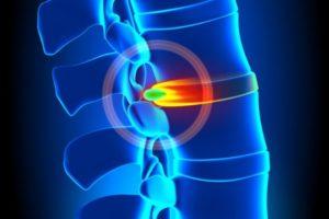 כאבים מפריצות דיסק ובלט